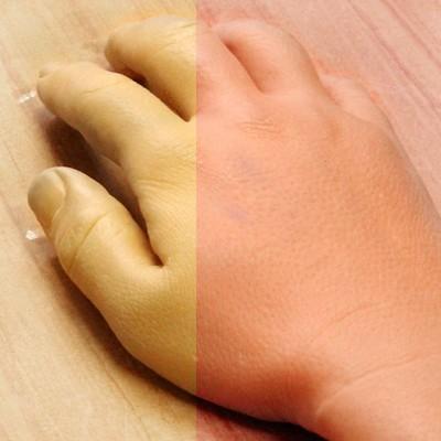 prosthetic_hand1